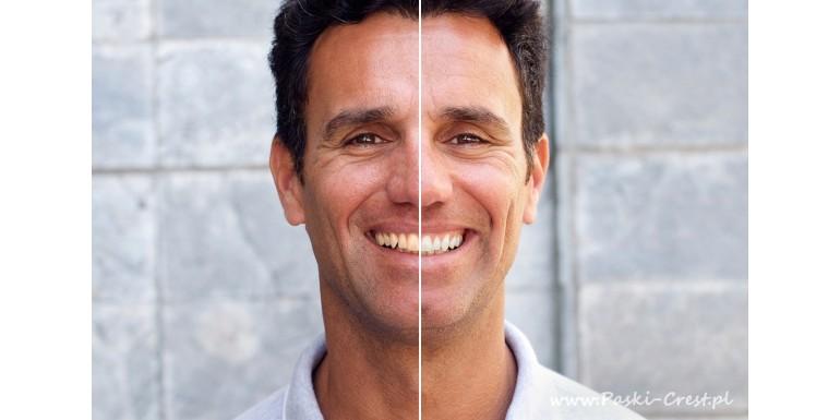 Paski wybielające zęby – kit czy git Internetu?