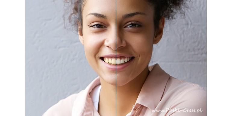 Wybielające paski do zębów - jak z nich korzystać?