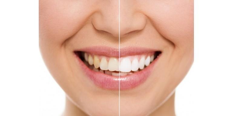 Wybielanie zębów a nadwrażliwość – czy osoby z nadwrażliwością zębów mogą wybielać zęby?