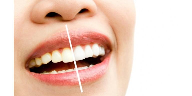 6 sposobów na białe zęby!