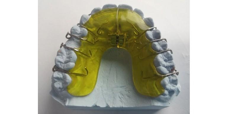 Wybielanie zębów a aparat ortodontyczny - sprawdzone porady