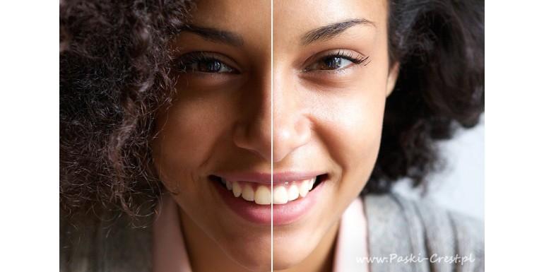 Skuteczne domowe sposoby na wybielanie zębów